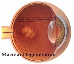 Nano Innovation to Cure Macular Degeneration