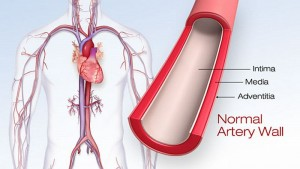 Heart Disease starts from Stomach: Red Meat hardens the Arteries