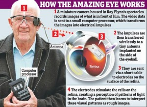 Bionic Eye allows blind man to see again: The Eyeborg